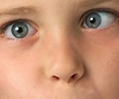 Paediatric Eye Diseases and Squint Correction