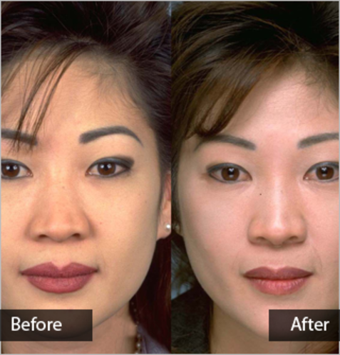Facial Feminization Surgery Services in Kolkata, Hospicemed