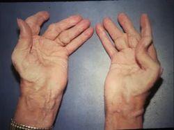 Arthritis Treatment Services