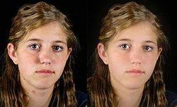 Beauty Photo Restoration Service
