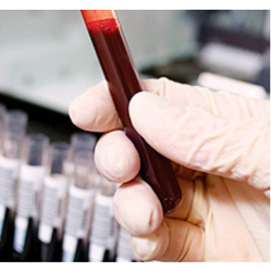 Blood Testing Services.