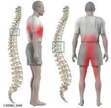 Thoracic Spine Surgery In India
