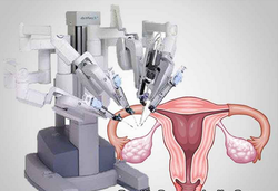 Gynecology Surgery