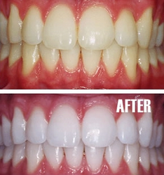 Bleaching / Teeth Whitening