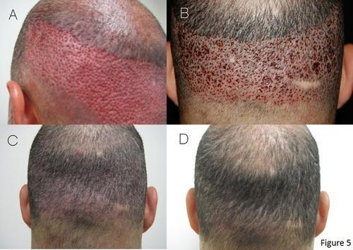 Fue Hair Transplant Surgery In Krishna Nagar Ludhiana Satyam Hair