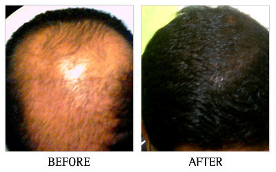 Cheapest hair transplantation clinic in bangalore in jayanagar cheapest hair transplantation clinic in bangalore pmusecretfo Image collections