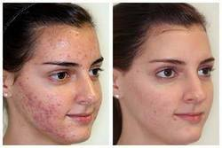 9:00 am to 9:00 pm Unisex Face Skin Beauty Services