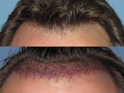 Non Surgical Hair Replacement In India
