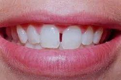 Diastema Dental Clinics