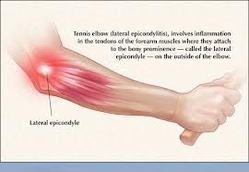 Radial Tunnel Syndrome - Tennis Elbow Service Provider from New Delhi