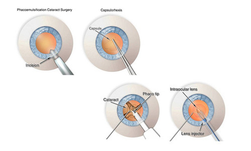 Surgery Cataract Surgery With Phaco Emulsification