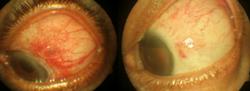 Micro Incision Vitrectomy Surgery