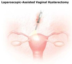 More detail assisted vaginal hysterectomy absolutely