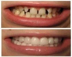 Bleaching Dental Treatment