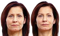 Cosmetic Fillers - Dermal Fillers Latest Price