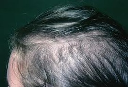 Hair Falling