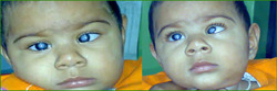 Pediatric Cataract