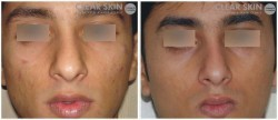 Acne Mild Treatments