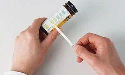 Urine Test Services