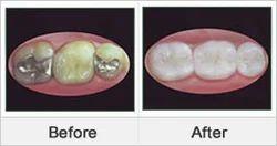 Cavity Tooth Pain