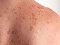 Skin Discoloration / Pigmentatio Treatment Solution in ...