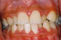 Gum Disease Treatment Service