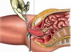 Hysterectomy Medical Treatment