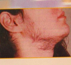 Female Hirsutism Hair Treatment