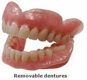 Dentures Partial Dentures, Flexible Dentures