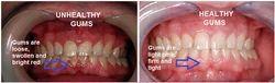 Periodontics - Gum Problem