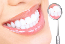 Tooth Whitening Treatment Service