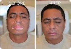 Vitiligo Treatment व ट ल ग ट र टम ट सर व स ज व ट ल ग ट र टम ट सर व स व ट ल ग क उपच र स व ए In Madurai S P Derma Center Id 7745191033