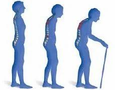 Arthritis, Osteoporosis