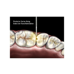 Posterior Caries With Endo Lite Light Cure Unit