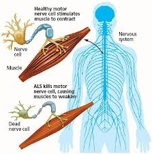 Neuromuscular Diseases: