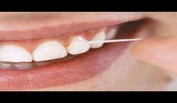 Periodontal/ Gum Treatment