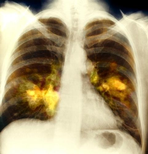 Ayurvedic treatment for Interstitital lung disease in Dharamsala