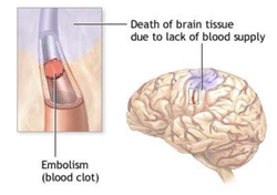 Medical & Surgical Managment Of Stroke