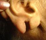 Ear Lobe Repair Service