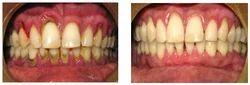 Periodontal Gum Treatment/Flap Surgery