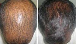 Hair Loss Homoeopathy Treatment