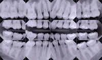 Dental Digital-X-Rays Treatment Service