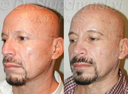 wasting treatment Facial