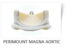 Perimount Magna Aortic