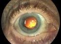 Cataract With Iol Implantation