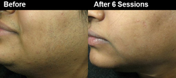 Hair Removal Skin Treatment