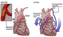 Triple Heart Bypass Surgery