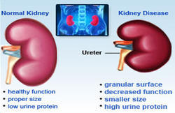 Diabetic Kidney Care