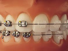 Dental Braces In Ludhiana डेंटल ब्रेस लुधियाना Punjab