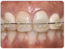 Clear Braces Or Invisible Braces